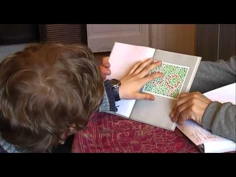 a látásélesség függése a dioptriáktól az életkorral összefüggő látás degeneráció