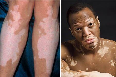 Vitiligo okairól, tüneteiről, kezeléséről minden.