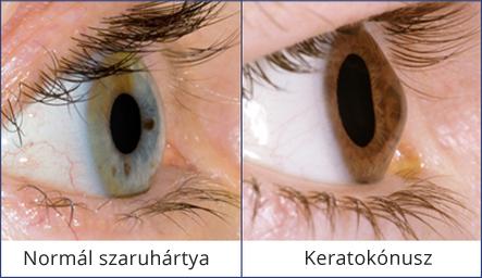 a kitágult pupillák gyengén látnak