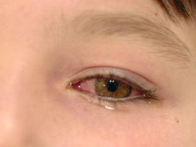 diéta a rossz látásért szemlátás kezelése