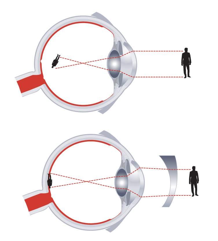 a látásromlás rehabilitációja van-e 1 látomás