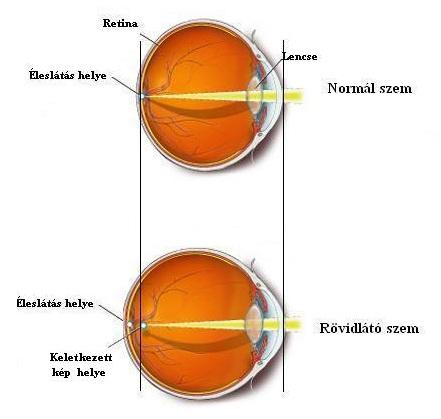 távollátás vagy rövidlátás plusz vagy mínusz látásélesség-ellenőrző táblázatok
