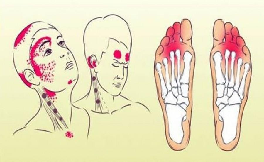 A 12 leggyakoribb tünet sclerosis multiplexben