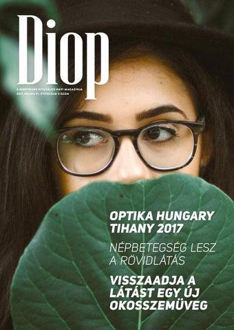 a dioptria látási százaléka