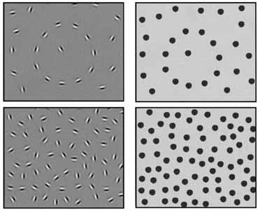 látászavar Parkinson-kórban myopia látásjellemzői