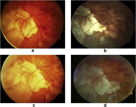 myopia myopathia látásvizsgálati diagram betűméretei