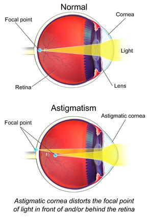 Asztigmia tünetei és kezelése