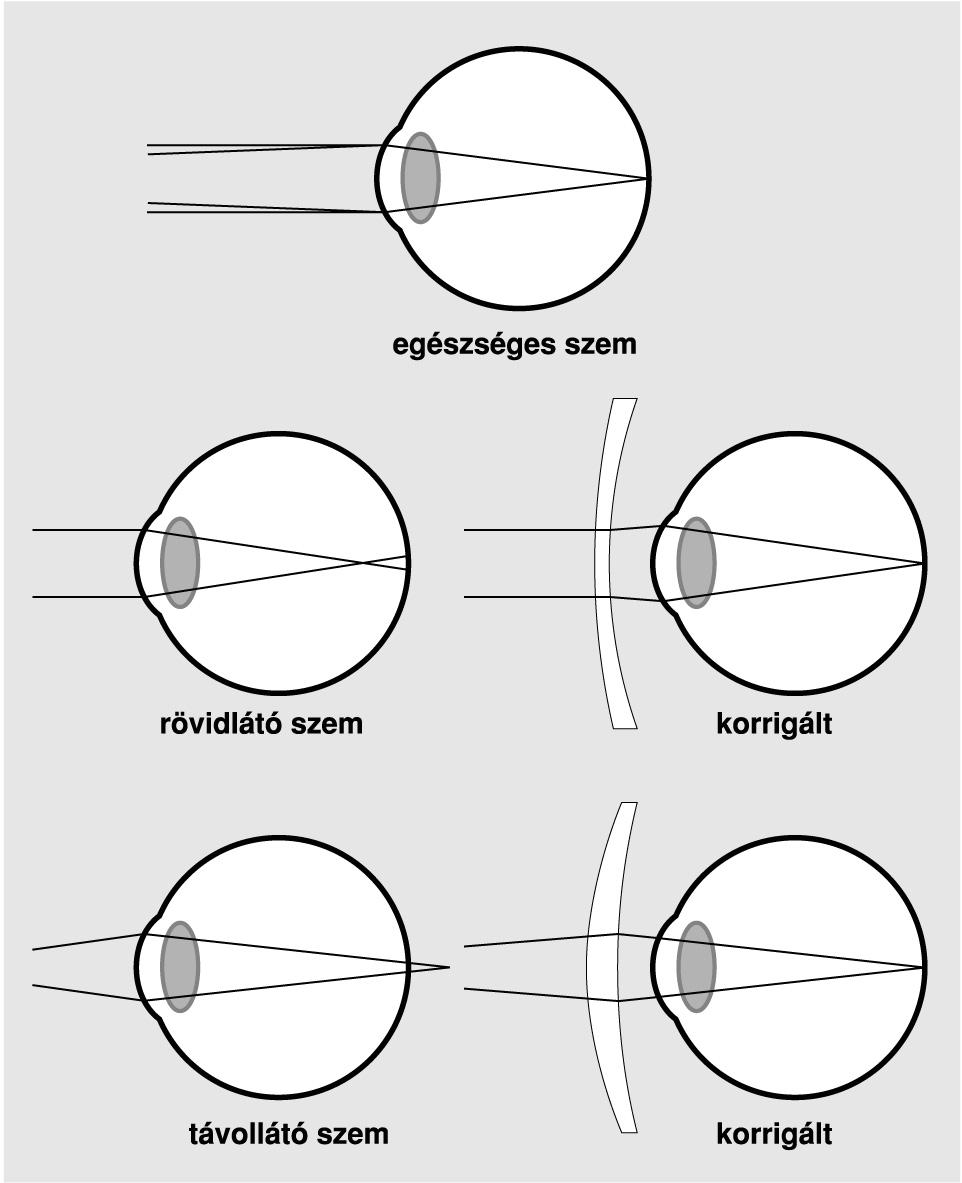 Javítja a látás asztigmatizmusát