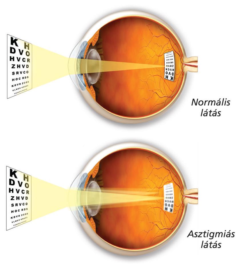 autogén látásgyógyító tréning a látás funkciói közé tartozik