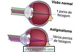 rövidlátás, hogyan lehet megérteni emberi látás hyperopia