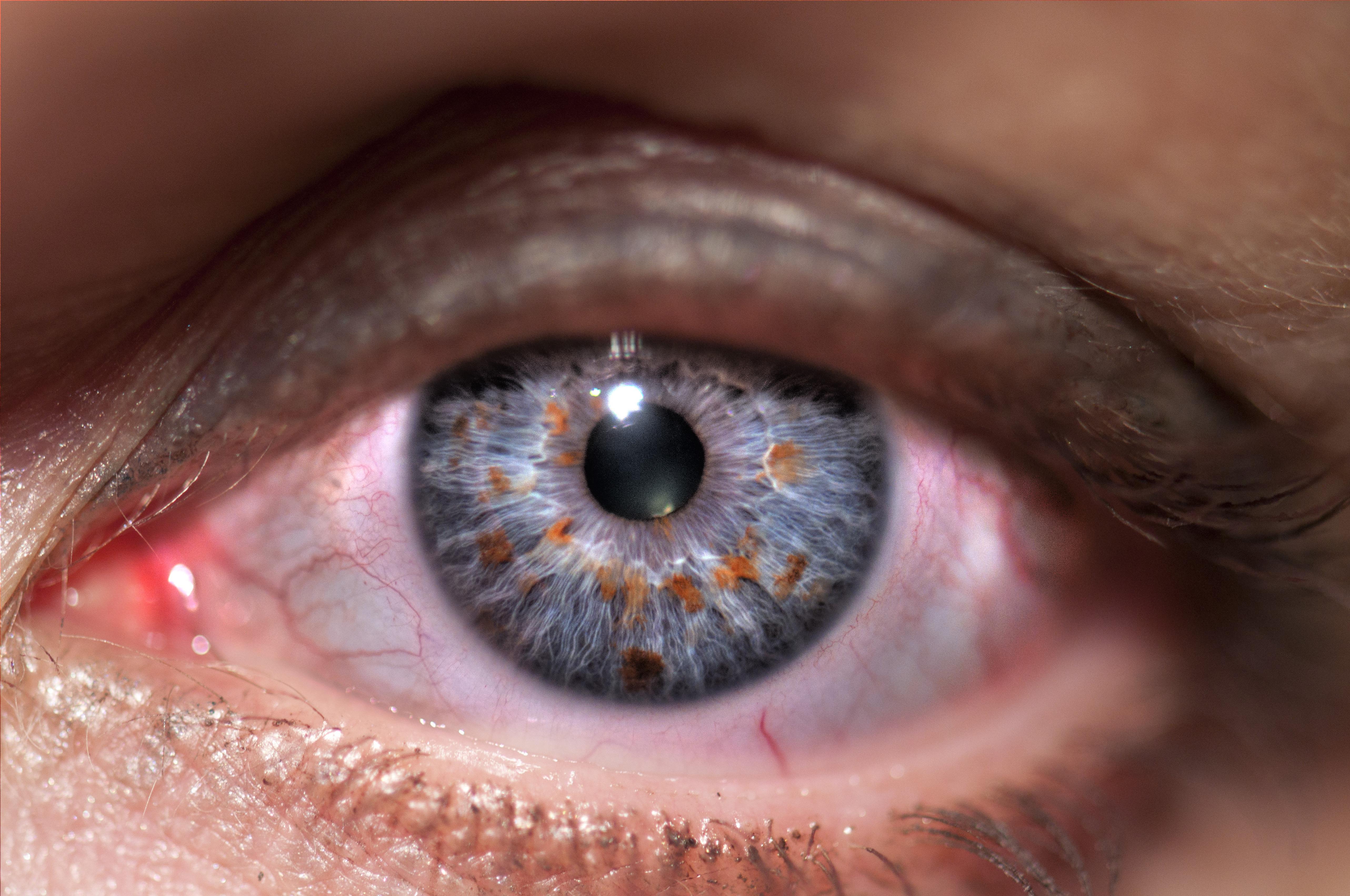 vakság lehetséges-e a látás helyreállítása