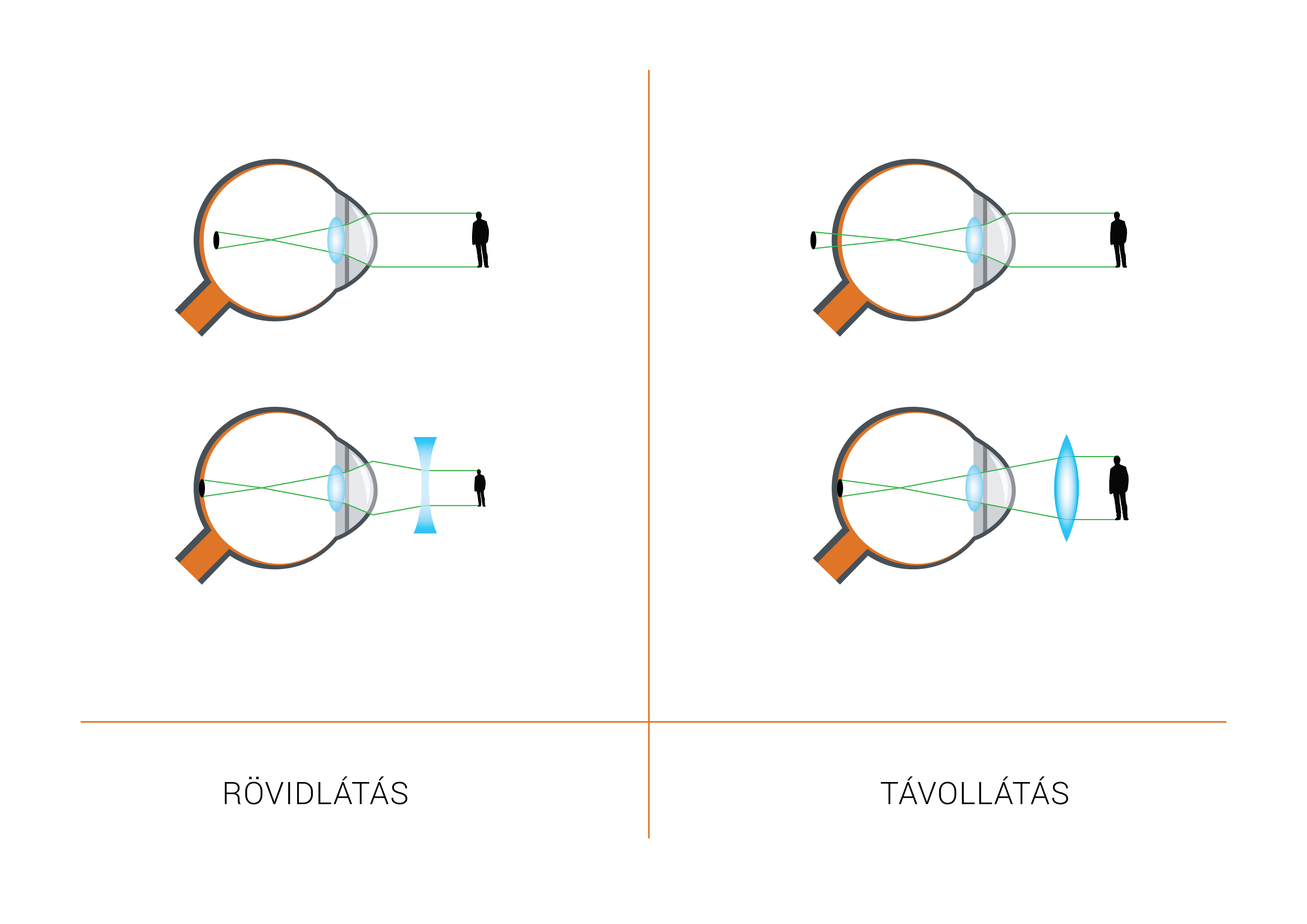 látás plusz a myopia vagy a hyperopia