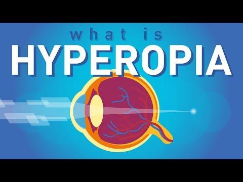 Tibeti gimnasztika hyperopia esetén, Hyperopia, torna a szem számára