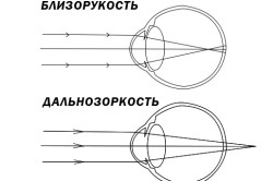 Mi a myopia és a hyperopia - Injekciók August