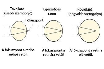 mi a rövidlátás és annak kezelése)