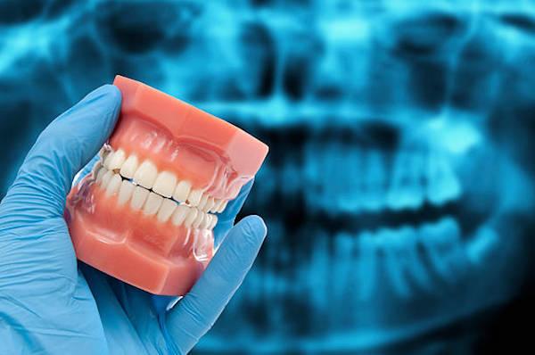 a fogak hatása a látásra
