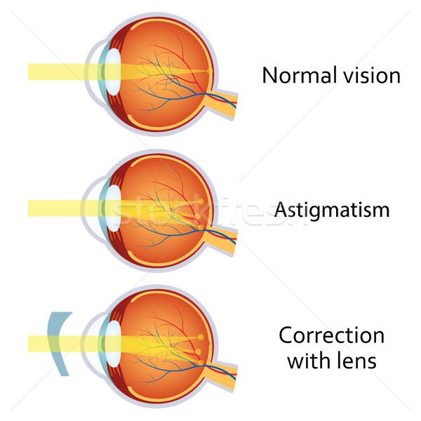 melyek a leggyakoribb látási problémák