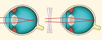 Lézeres látás myopia