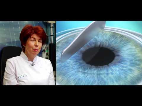 a látásjavítás erősítése