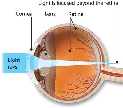 Myopia műtéti fórum