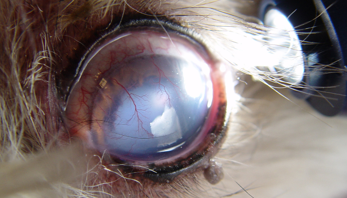 hogyan lehet visszaállítani a látás szürkehályogra nagyfokú látás helyreállítása