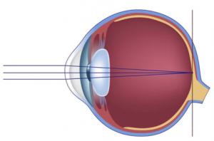 hyperopia myopia mi ez