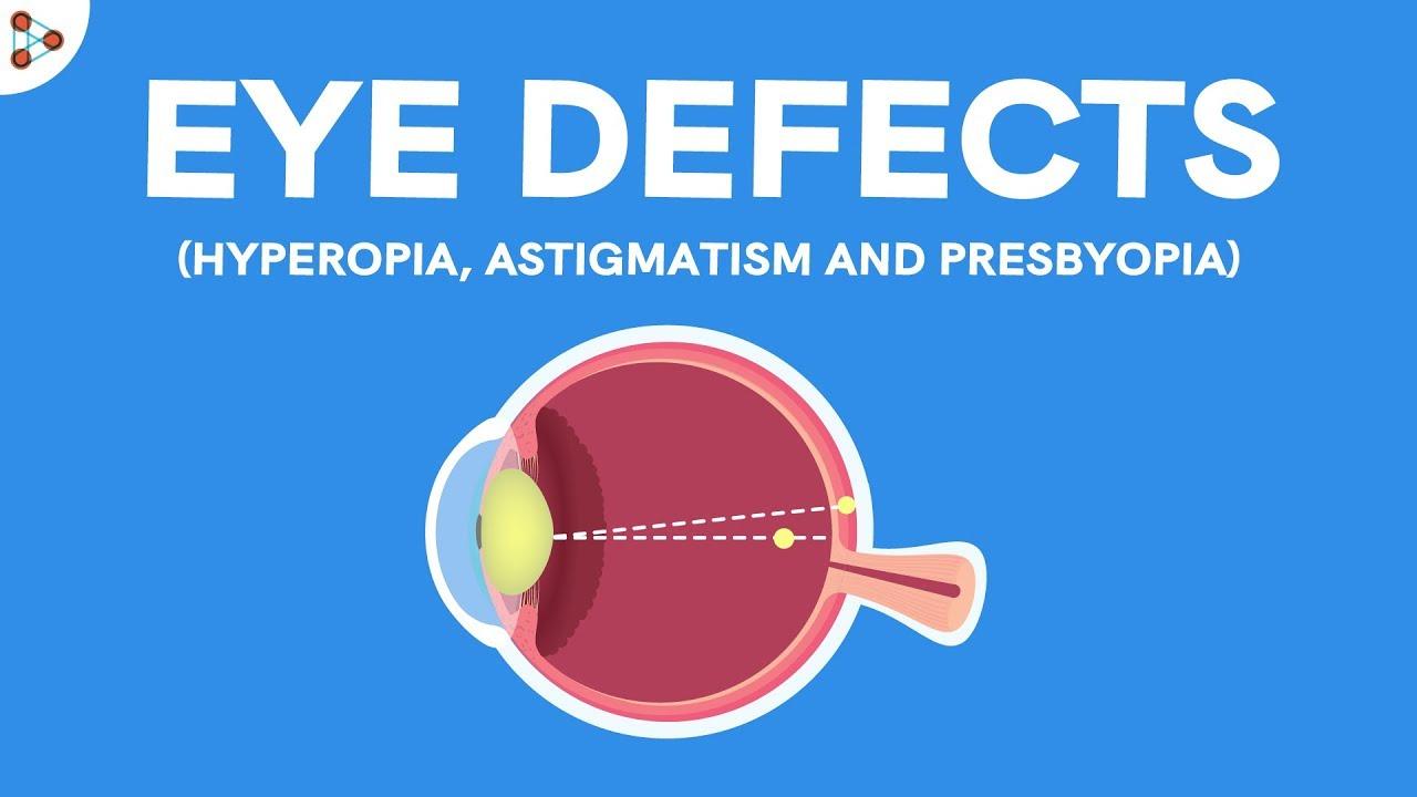 A myopia jelensége plusz vagy mínusz?