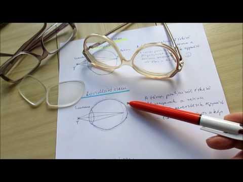 látásbetegségek myopia