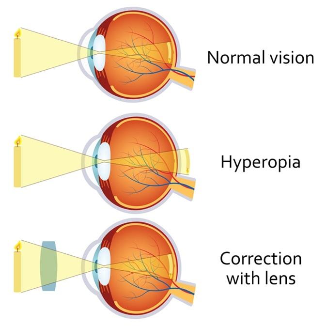Szemüveg plusz hyperopia vagy közellátás