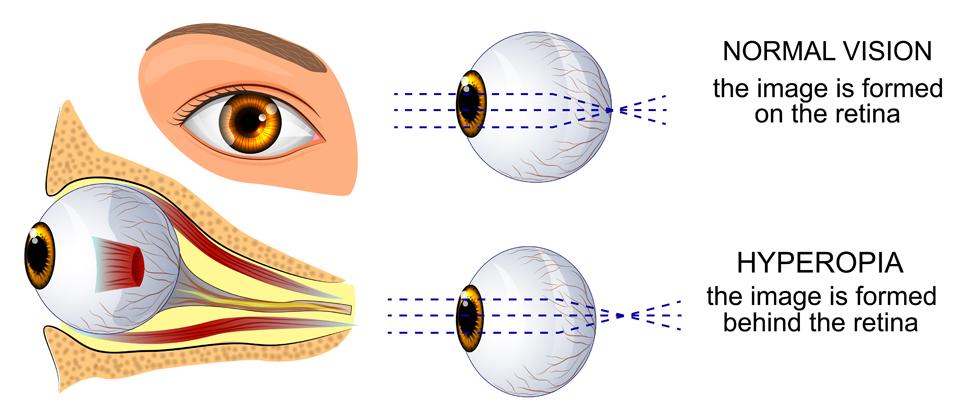 Astigmia: a szem egyik fénytörési hibája, Astigmatizmus myopia esetén