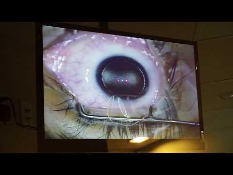keratitis és látás