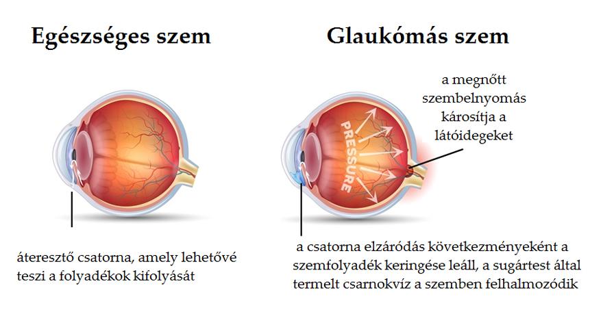 krónikus szembetegségek rövidlátás és szürkehályog egy szemben