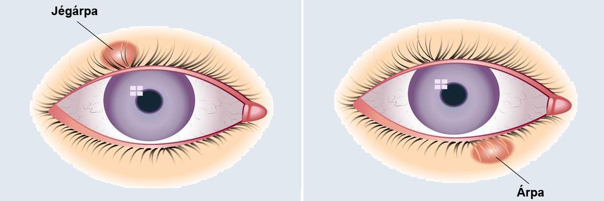szürkehályog műtét utáni gyógyulási időszak mi van, ha a látás mínusz kettő