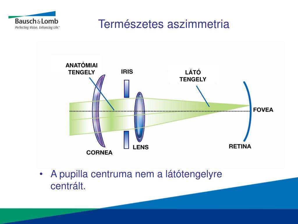 miért csökken a látás ellenőrzésekor)