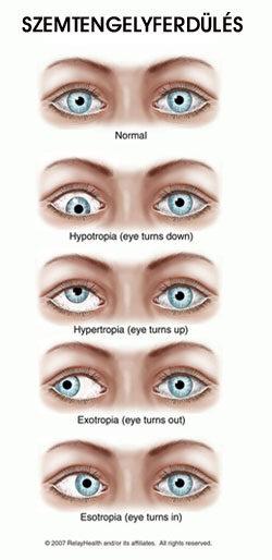 10 évesen normális a látás myopia következményeként