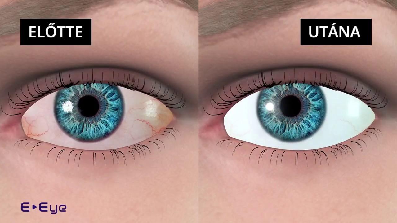 szemmasszázs a látás helyreállításához hyperopia műtéti kezelése