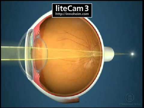 Hyperopia szemészet, Hyperopia: mi ez és a fő tünetek