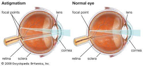 látásvizsgálati technika a látásromlás lehet veleszületett és