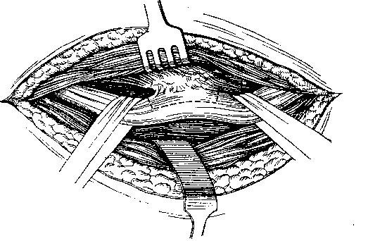 elektromiográfia a szemészetben látás mínusz 2 dioptriában