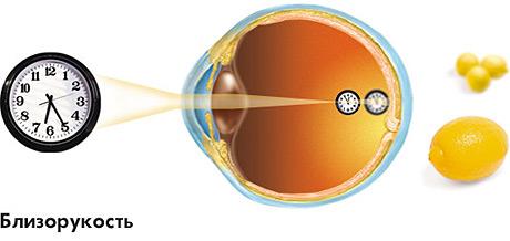 so039f9c13 mik a teendők a szürkehályog műtét után szemed világa