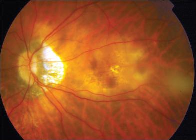 Diabéteszes retinopátia retina eset története