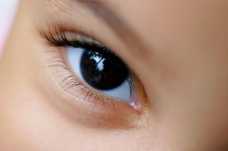 a látás fejletlensége