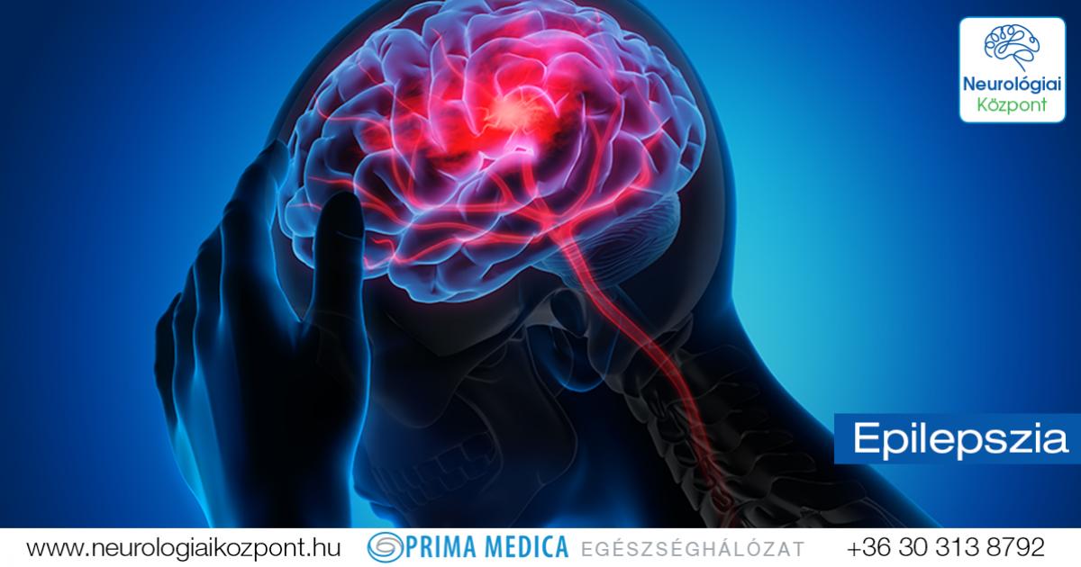 epilepsziás látással