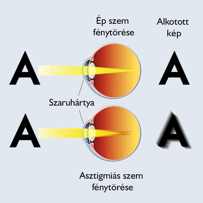 hogyan alakul az emberekben a látás