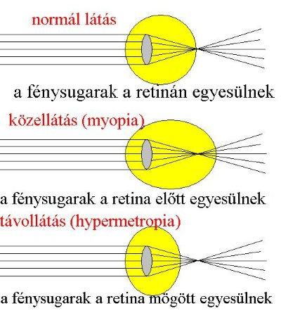 Törési hibákról, és a szemüvegviselési hibáról általában Optikai látási probléma