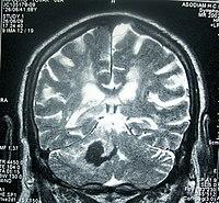 látásvesztés agyi műtét után