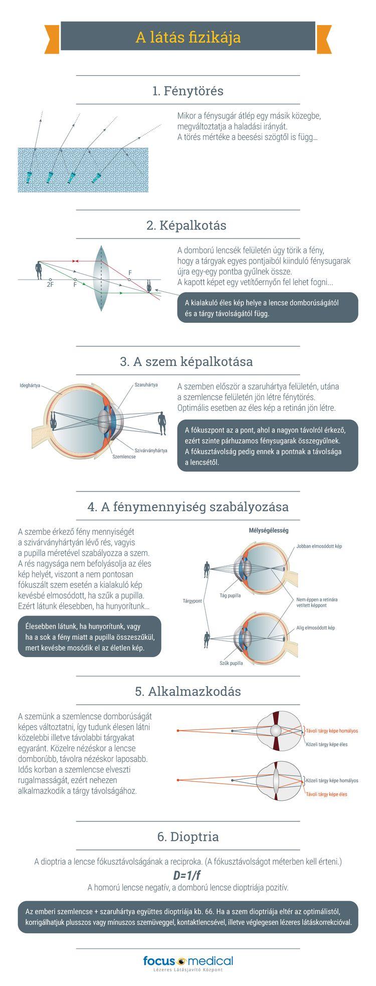 LBV-kezelés - Éles látás szemüveg nélkül