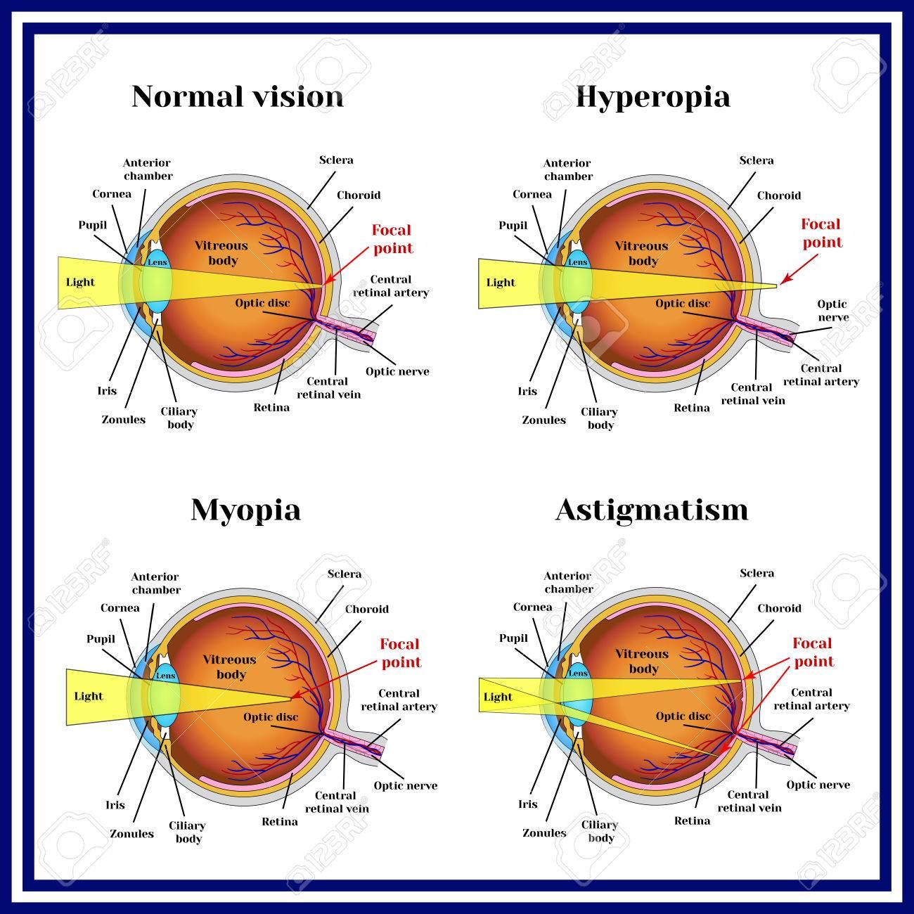 myopia hyperopia astigmatism kezelés