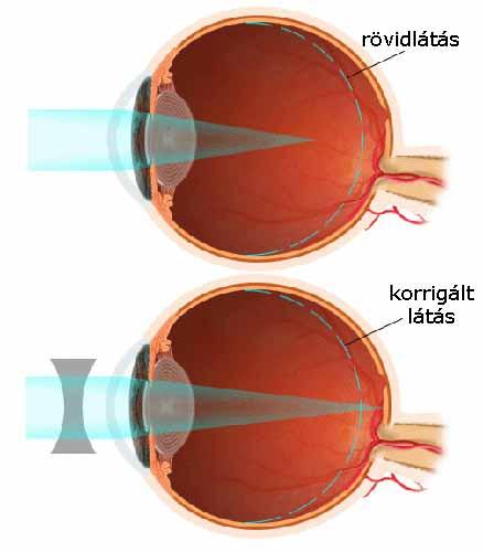 Rövidlátás, távollátás tünetei és kezelése Myopia betegség