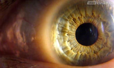 a rövidlátás helyreállíthatja a látást